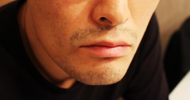 顔の長いのを治すにはどうしたらいいの?気になる面長改善法
